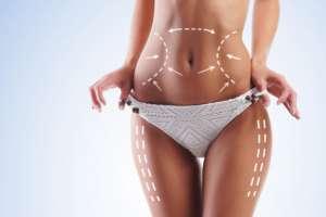 vaser liposuction işlemi